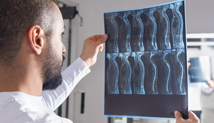 Spinal Cord Injury Xray