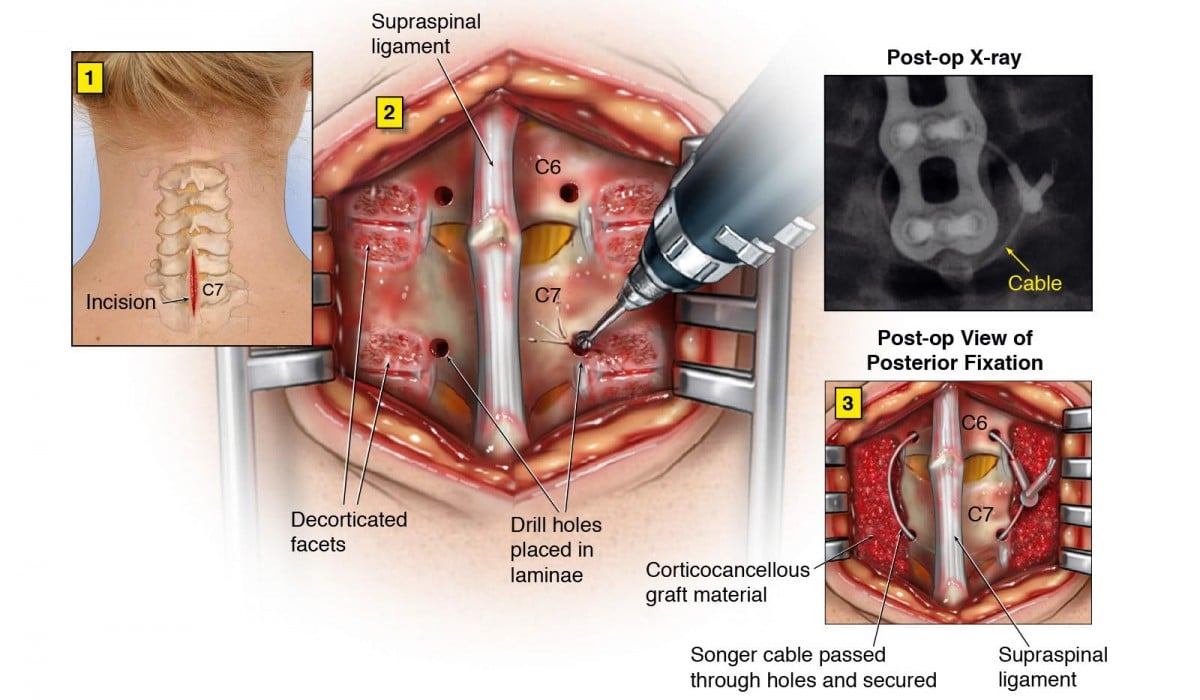 Posterior Cervical Spine Fusion Surgery